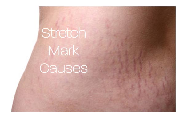 What Causes Stretch Marks On The Skin Natural Cleanse