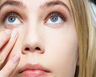 Eye Bag Remedies