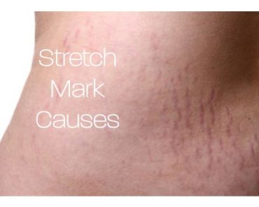 What Causes Stretch Marks