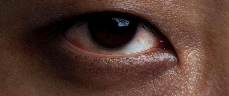 What Causes Dark Circles? - Natural Cleanse Review